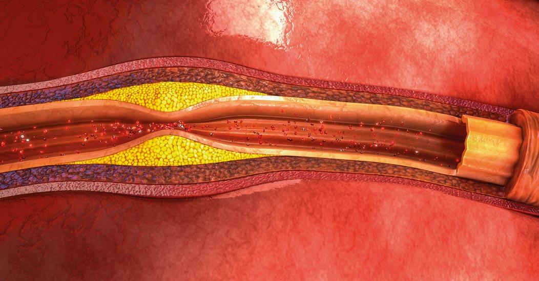 Cholesterol, cukier, lipidy – jak utrzymać prawidłowe wartości?